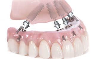Использование синус лифтинга при имплантации зубов: что это, особенности процедуры