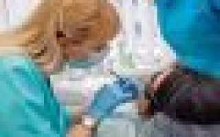 Неправильный прикус у ребенка и кривые зубы: что делать