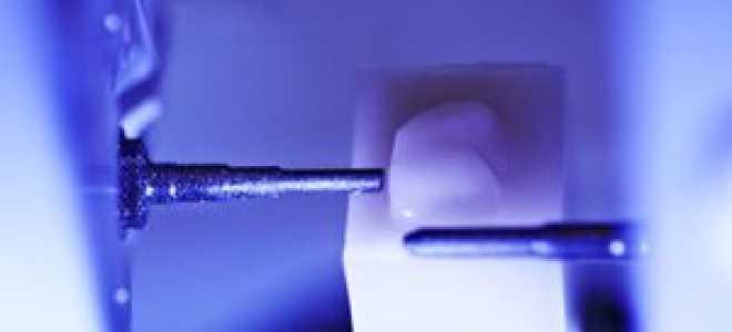 Художественная реставрация зубов CEREC 3D (ЦЕРЕК): технологии и отзывы