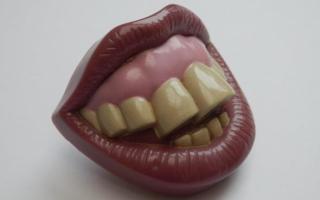 Почему болят и ноют передние верхний и нижний зубы: как их лечат