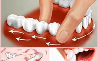 Как сделать массаж десен в домашних условиях пальцами и зубной щеткой