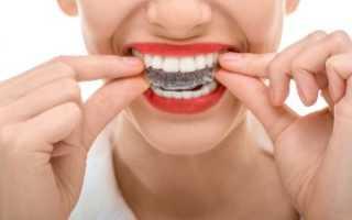 Капа для выравнивания зубов: виды, цены, отзывы, особенности использования