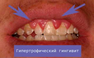 Причины, симптомы и лечение гингивита: катаральный, гипертрофический и другие виды заболевания
