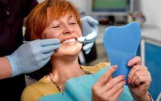 Рекомендации после имплантации зубов: как ухаживать, питание, возможные осложнения