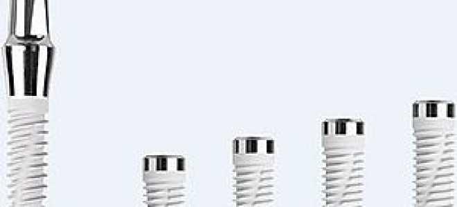Корейские имплантаты Snucone: отзывы, каталог, цена, результат, установка